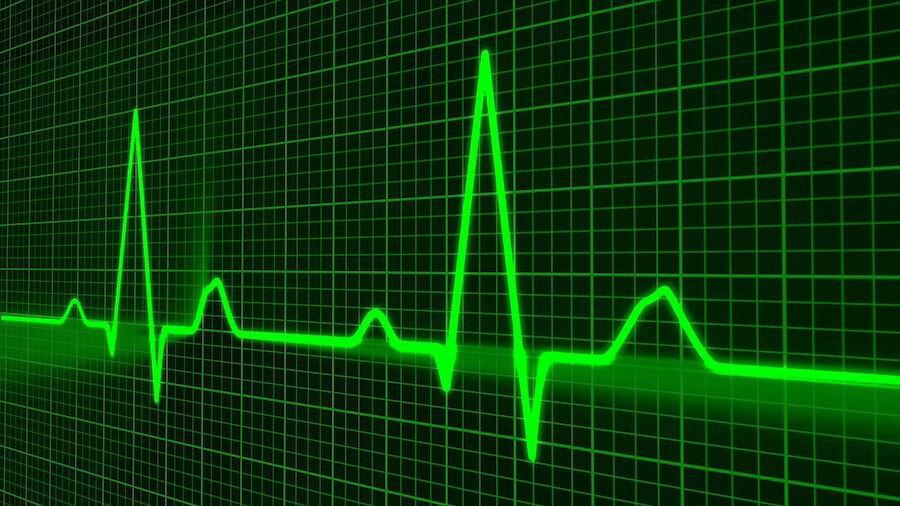 Symptome einer Aortenstenose werden mittels Ultraschall untersucht - das Bild zeit die Herzfrequenzmessung.