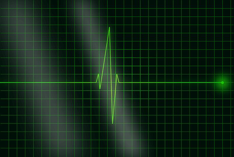 Überprüfung der Herzfrequenz nach einer Herzklappen-OP - das Bild zeigt ein Kardiogramm.