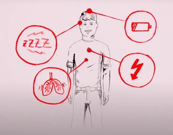 Darstellung von vier typischen Symptomen im Zusammenhang mit Herzklappenfehlern.