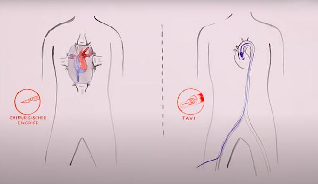 Chirurgische Aortenklappenoperation und TAVI im Vergleich (Illustration)